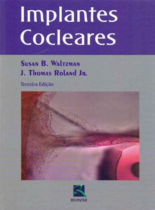 Implantes Cocleares thumbnail