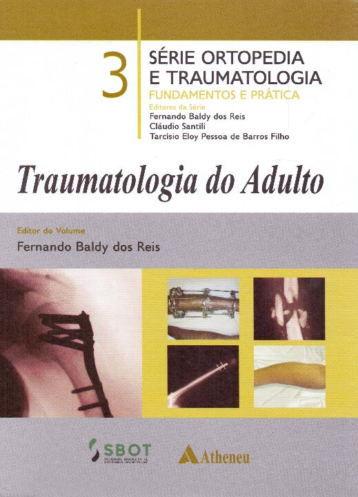Traumatologia do Adulto - Vol. 03 thumbnail